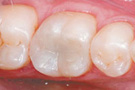 Phuket Dental Fillings